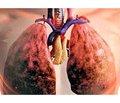 Обзор рекомендаций Европейского респираторного общества/Американского торакального общества: Ведение пациентов с обострениями хронической обструктивной болезни легких