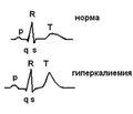 Hyperkalemia management in children with chronic kidney disease