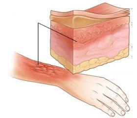 Damage Control Surgery в хирургии ожогов прикомбинированных огнестрельных повреждениях
