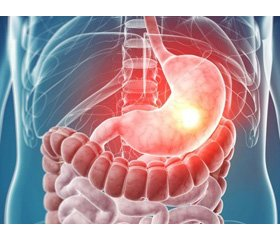 Gastric motility disorders in adolescents with gastroesophageal reflux disease  and functional dyspepsia