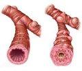 Взаимосвязь сывороточного содержания цитокинов и нейропептидов у детей с рекуррентным бронхитом и синдромом вертебробазилярной артериальной системы
