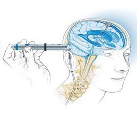 Features of anesthesia in children with hydrocephalus