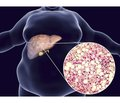 Type 2 diabetes mellitus and non-alcoholic fatty liver disease: new opportunities for therapeutic correction