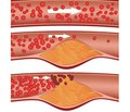 Diabetes mellitus and atherosclerosis. The role of inflammatory processes in pathogenesis (literature review)