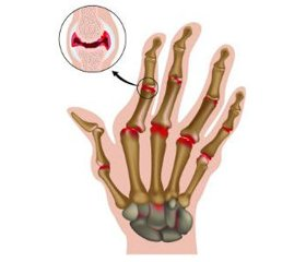 Interrelations of impaired biochemical and immunological homeostasis in patients with juvenile rheumatoid arthritis taking into account the disease duration