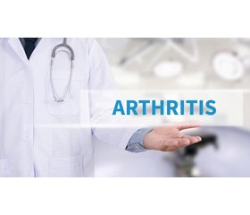 Arthritis in primary immunodeficiencies