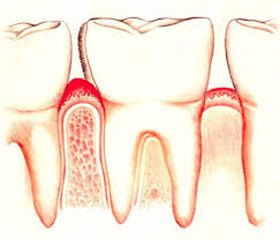Application of the treatment and preventive measures for caries and gingivitis in school-age children