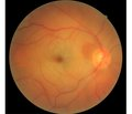 Retinal vascular occlusion after cardiac surgery: 6 months of observation