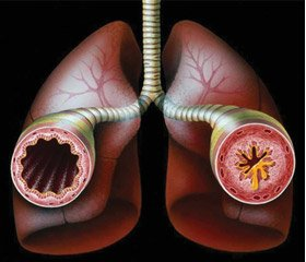 Prediction of the severe course of bronchial asthma in children