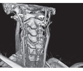 The role of stylo-carotid syndrome in the development of dissection of the internal carotid artery and cerebral infarction (a literature review and own observation)