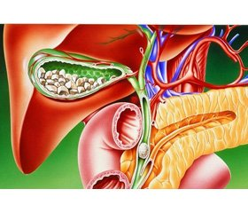 Ефективність раннього операційного втручання при гострому біліарному панкреатиті