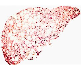 Changes in the brain vessels in patients with non-alcoholic fatty liver disease and carbohydrate metabolism disorder
