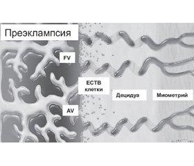 Прогностические биохимические маркеры преэклампсии