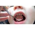 Визначення передумов  для реалізації регіональних програм профілактики карієсу зубів  на території Закарпатської області