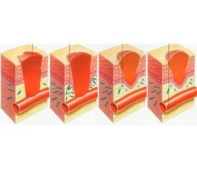 Антибактериальная терапия гнойных ран