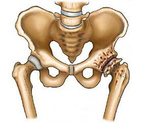 Реабілітаційні заходи у хворих на ранніх стадіях коксартрозу після проведення артроскопії кульшового суглоба