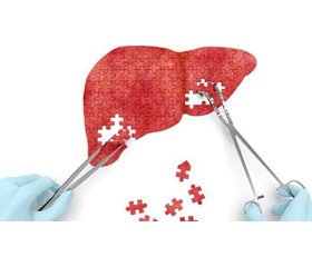 The effectiveness of different antiviral treatment regimens in patients with chronic hepatitis C infected with genotype 3 virus