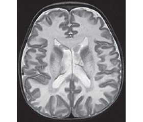 Clinical masks of orphan diseases: Canavan disease (OMIM 271900): scientific review and case report