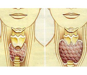 Syndrome of hypothyroidism as a factor ofcardiovascular pathology development (literature review)