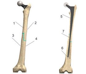 """The study of the stress-strain state in the """"implant-bone"""" system on the model  of the allocomposite endoprosthesis of the proximal femur"""