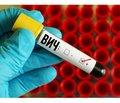 Вплив людей, які вживають ін'єкційні наркотики, нарозвиток епідемії ВІЛ/СНІДу в Україні