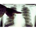 Place of azithromycin in the treatment of community-acquired pneumonia in children