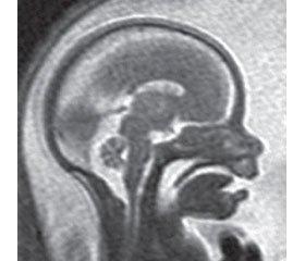 Практические рекомендации МОПУЗАГ по выполнению магнитно-резонансной томографии плода