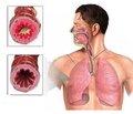 Причини сухого кашлю в дітей  та підходи до терапії