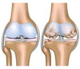 Сустамар: хондропротектор спротивовоспалительными ианальгезирующими свойствами в терапии пациентов с остеоартрозом