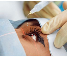 Ophthalmic complications as a result of drugs side effects