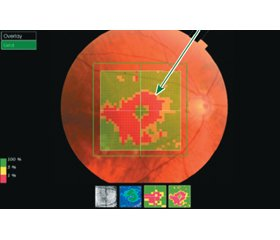 The effectiveness of Travinor® and Dorzitim® eye drops in the treatment of primary open-angle glaucoma and some biomorphometric correlations