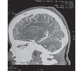 Clinical case of hemorrhagic stroke in pregnant woman as a result of ruptured cerebral arteriovenous malformation