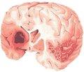 Ксаврон: новые возможности для лечения острого ишемического инсульта и бокового амиотрофического склероза
