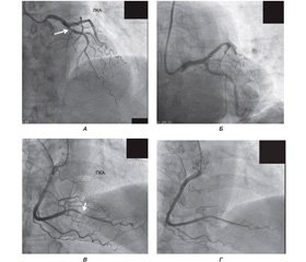 Fundamentals of diagnosis and treatment of pulmonary hypertension associated with left heart disease:  a clinical case