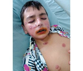 Stevens-Johnson syndrome in an adolescent: diagnosis and treatment (clinical case)