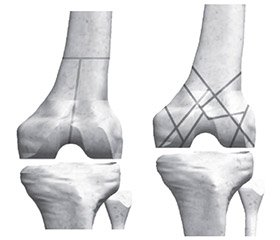 Analysis of the distribution of internal stresses and relative deformations in bone and extrafocal osteosynthesis in distal femoral metaphysis fractures