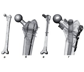 Analysis of stress-strain state of trochanteric femoral fracture models  after joint endoprosthesis
