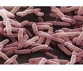 Применение Lactobacillus sporogenes в клинической практике