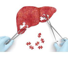 Эффективность и безопасность комбинированной антигипертензивной терапии (Экватор) и статинов (Мертенил) у пациентов с метаболическим синдромом, высоким кардиоваскулярным риском  и неалкогольной жировой болезнью печени