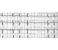 Обзор рекомендаций AHA/ACC/HRS по ведению пациентов с желудочковой аритмией и профилактике внезапной сердечной смерти — 2017. Часть 1
