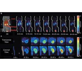 New positron emission radiopharmaceuticals in urological radionuclide imaging