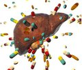 Drug-induced liver damage: principles of diagnosis, pathological changes and treatment approaches