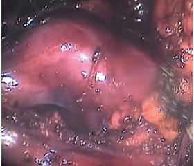 Особенности использования мочеточниковых стентов после ретроперитонеоскопической уретролитотомии в лечении камней  мочеточника