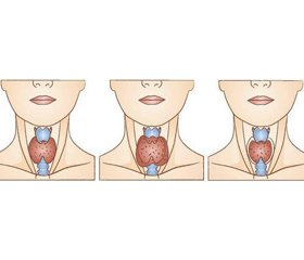 Therapeutic 'masks' of hypothyroidism
