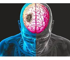 Analysis of mortality rate after cerebral strokes at the angioneurology department  of the Military Medical Clinical Center of the Western Region from 2013 to 2017