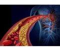 Вплив варіабельності артеріального тиску нафункціональний нирковий резерв приесенціальній артеріальній гіпертензії I стадії