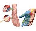 Diabetic polyneuropathy: modern principles of treatment