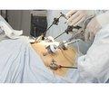 Послеоперационная боль у пациенток после лапароскопических операций в гинекологии