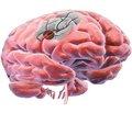 Патогенетическое лечение хронической церебральной ишемии: в фокусе цитофлавин