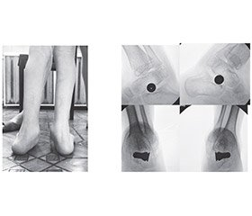 Results of treatment of planovalgus deformity in children  with cerebral palsy